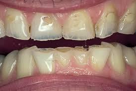 bulimia pérdida del esmalte dental